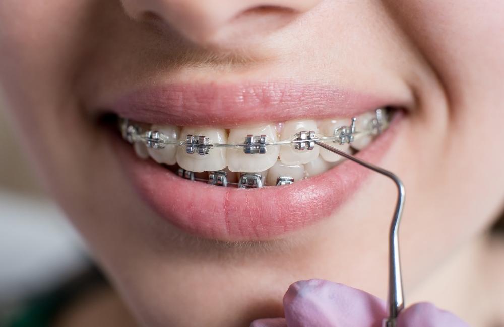 Ortodontia - Confidente